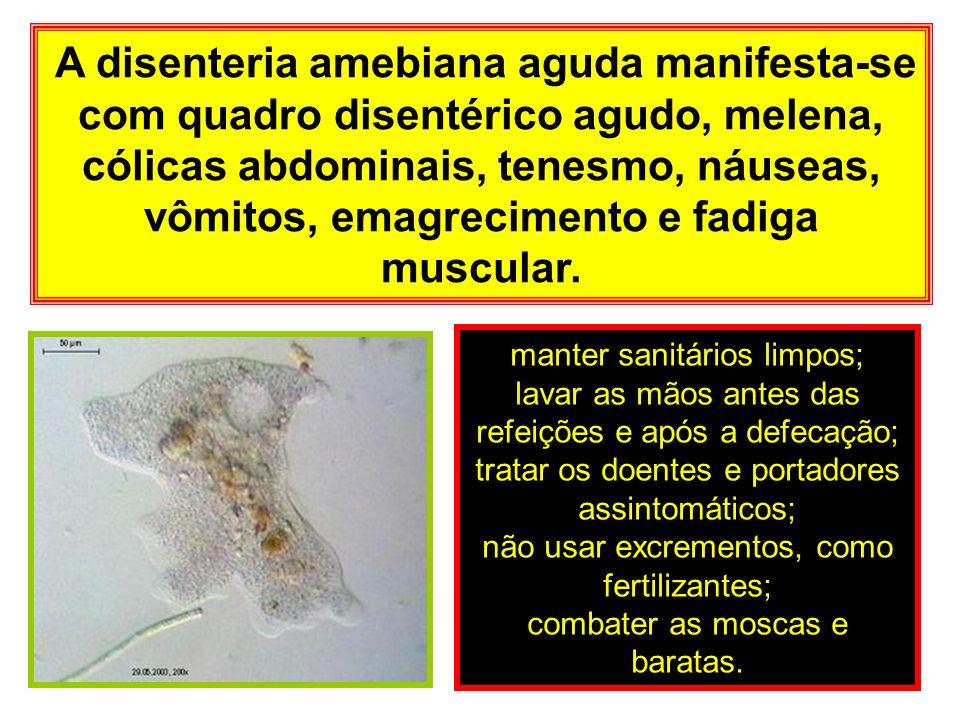 A disenteria amebiana aguda manifesta-se com quadro disentérico agudo, melena, cólicas abdominais, tenesmo, náuseas, vômitos, emagrecimento e fadiga muscular.