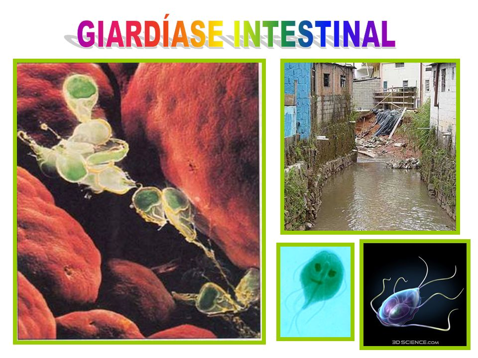 GIARDÍASE INTESTINAL