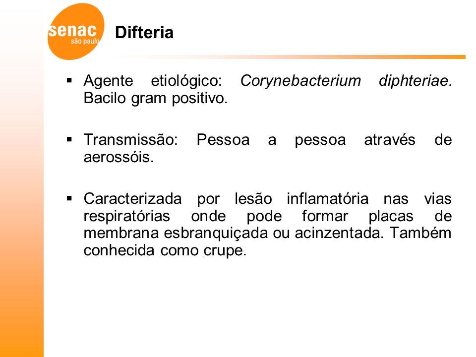 Difteria Agente etiológico: Corynebacterium diphteriae. Bacilo gram positivo. Transmissão: Pessoa a pessoa através de aerossóis.