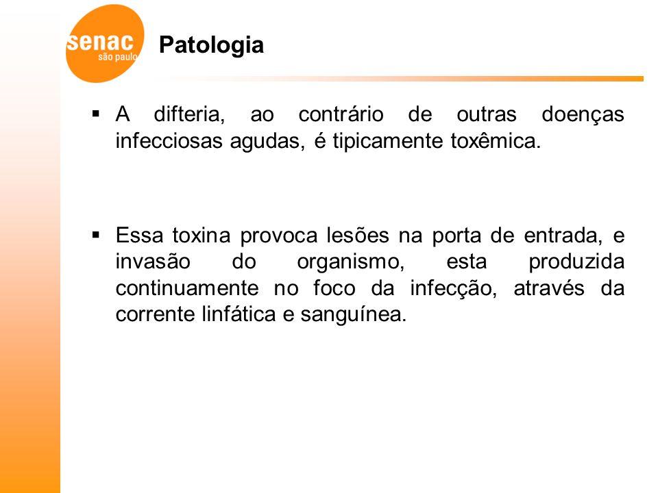 Patologia A difteria, ao contrário de outras doenças infecciosas agudas, é tipicamente toxêmica.