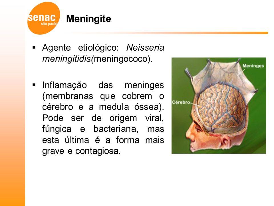 Meningite Agente etiológico: Neisseria meningitidis(meningococo).