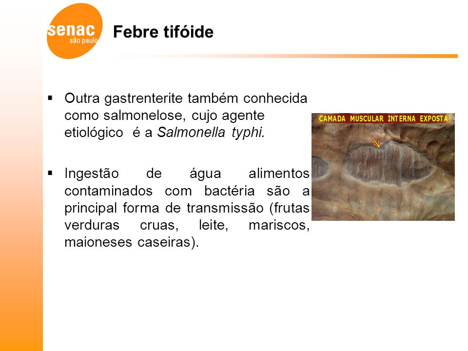 Febre tifóide Outra gastrenterite também conhecida como salmonelose, cujo agente etiológico é a Salmonella typhi.