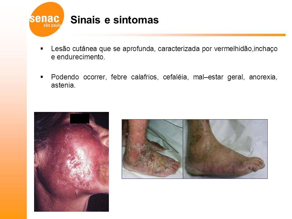 Sinais e sintomas Lesão cutânea que se aprofunda, caracterizada por vermelhidão,inchaço e endurecimento.
