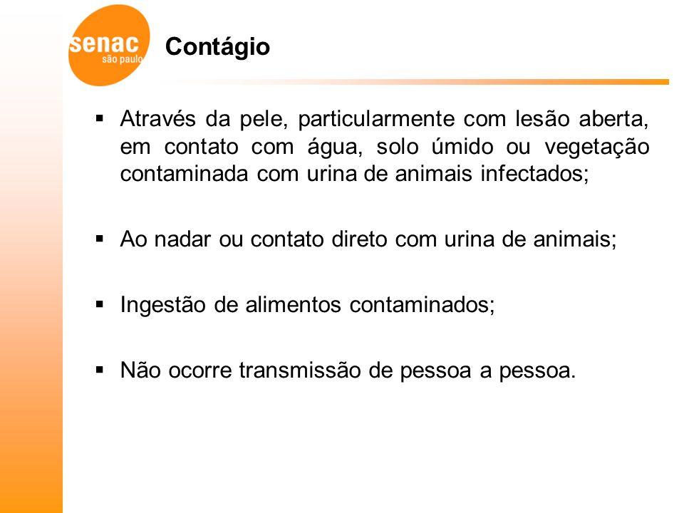 Contágio Através da pele, particularmente com lesão aberta, em contato com água, solo úmido ou vegetação contaminada com urina de animais infectados;