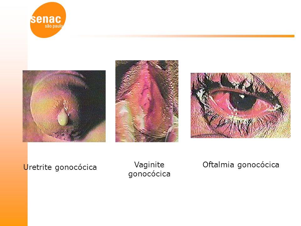 Vaginite gonocócica Oftalmia gonocócica Uretrite gonocócica