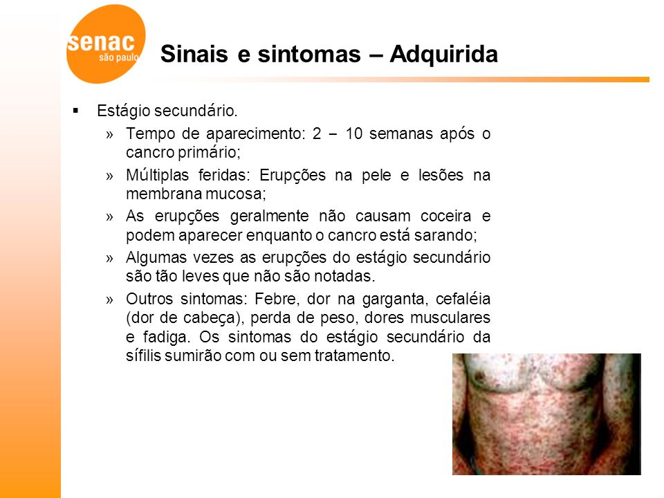 Sinais e sintomas – Adquirida