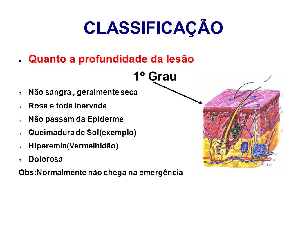 CLASSIFICAÇÃO 1º Grau Quanto a profundidade da lesão