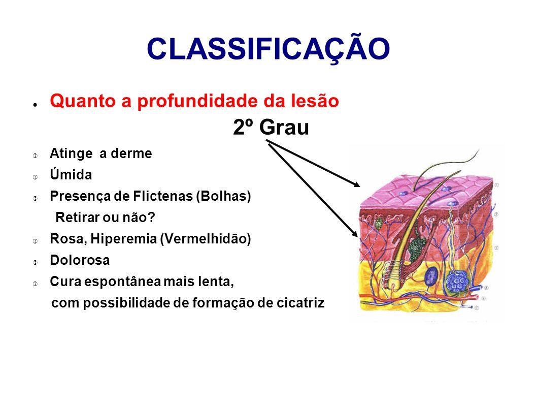 CLASSIFICAÇÃO 2º Grau Quanto a profundidade da lesão Atinge a derme