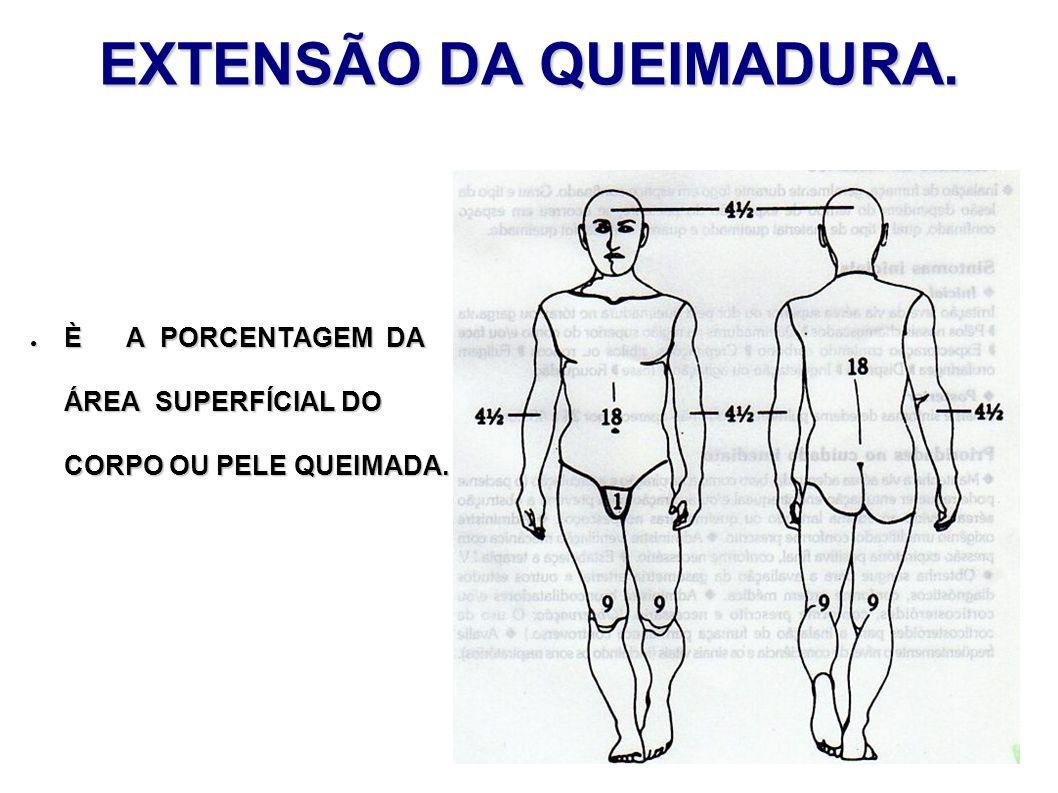 EXTENSÃO DA QUEIMADURA.