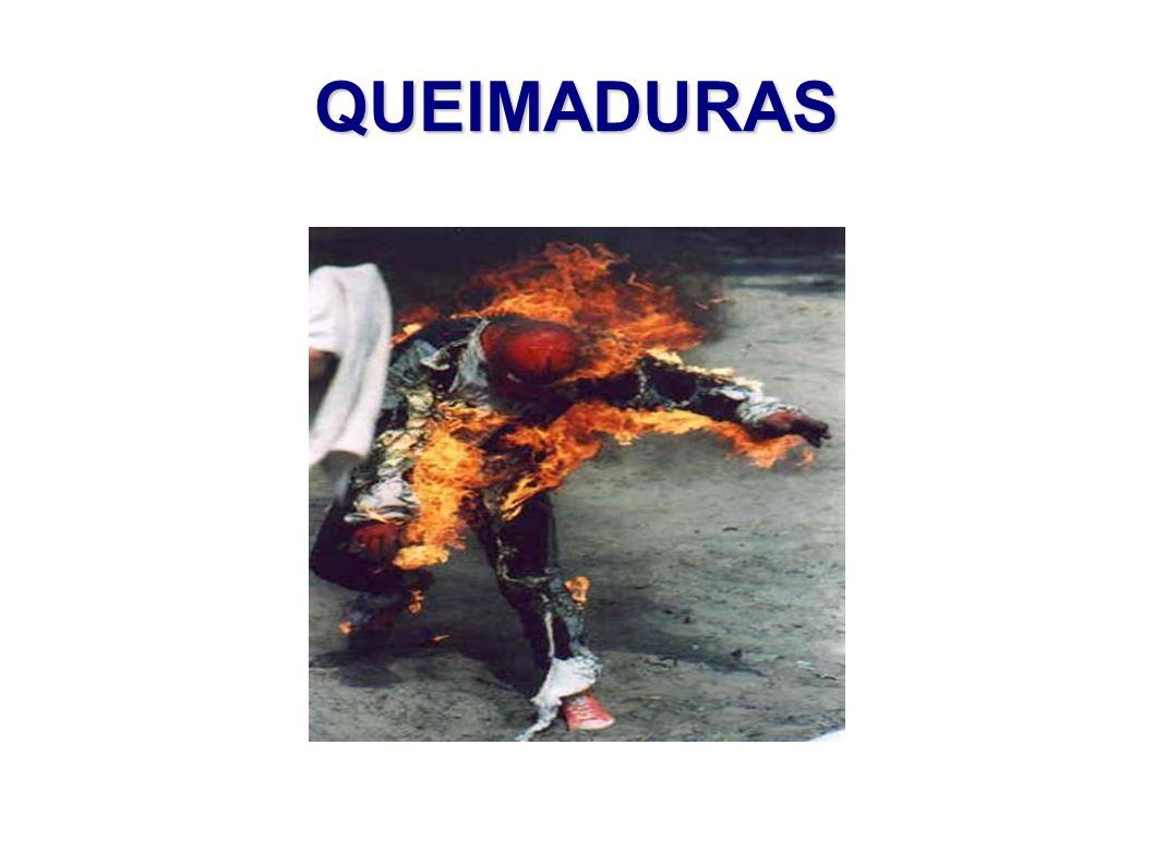 QUEIMADURAS