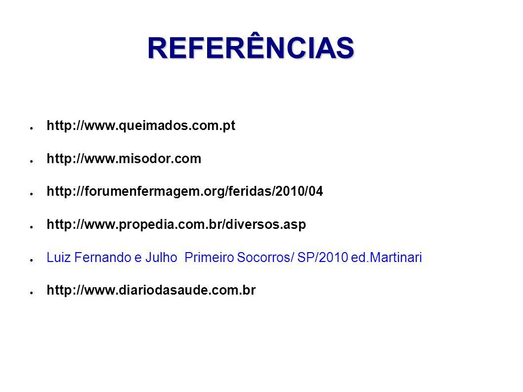 REFERÊNCIAS http://www.queimados.com.pt http://www.misodor.com