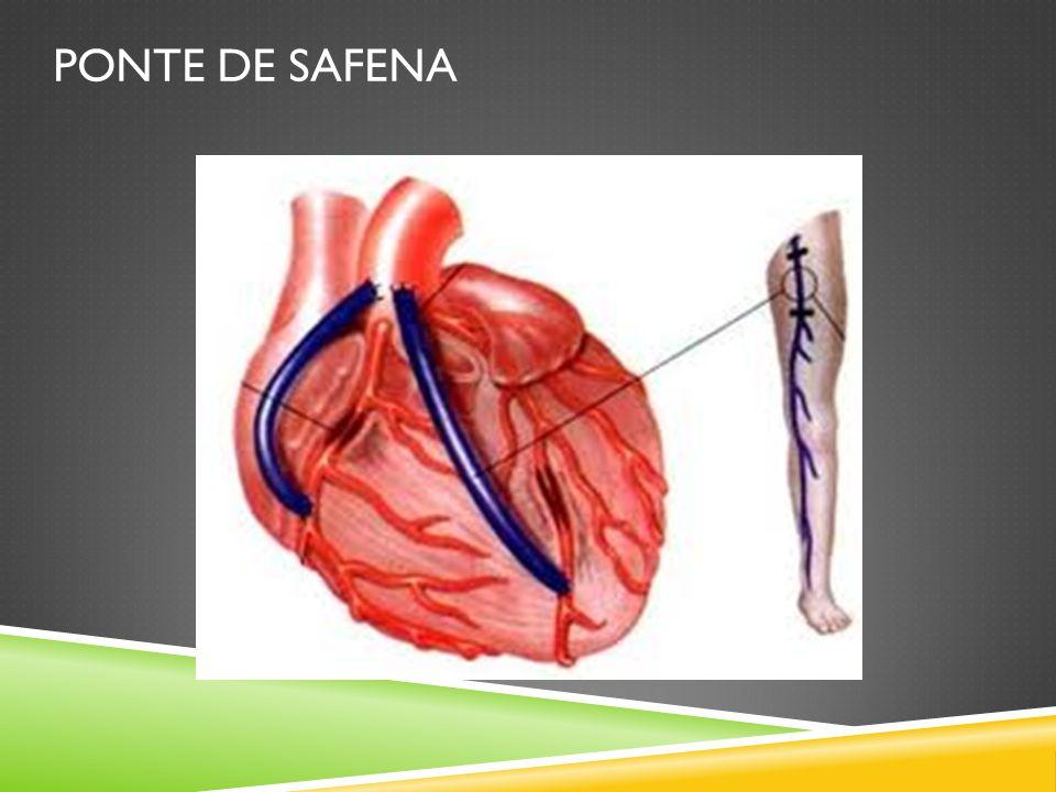 PONTE DE SAFENA