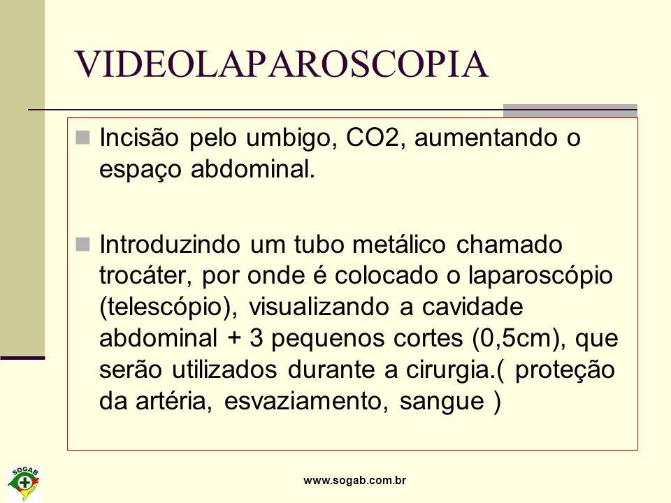 VIDEOLAPAROSCOPIA Incisão pelo umbigo, CO2, aumentando o espaço abdominal.