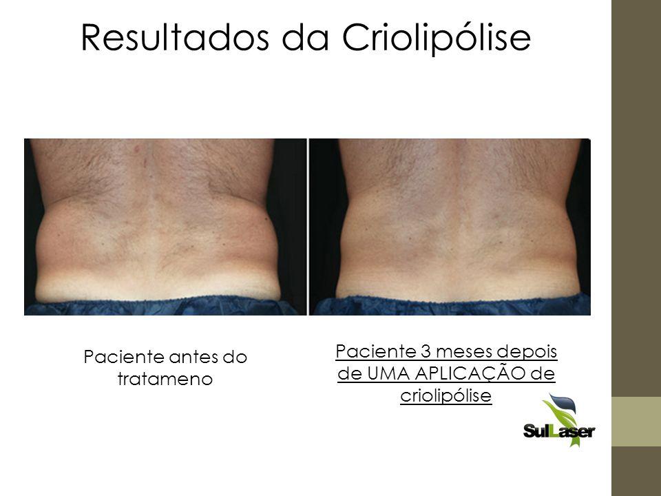 Resultados da Criolipólise