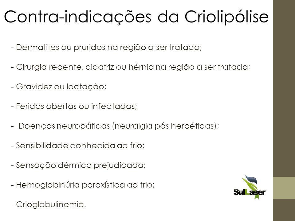 Contra-indicações da Criolipólise