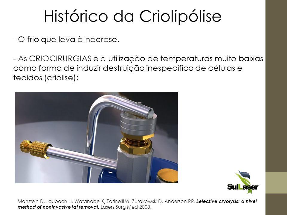 Histórico da Criolipólise