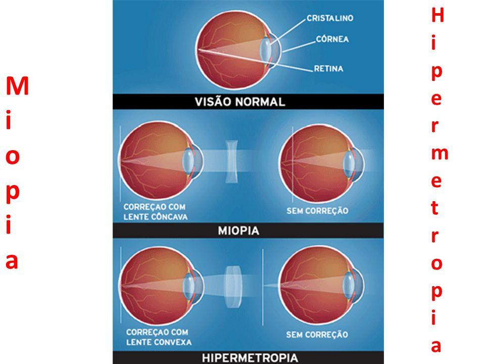 Miopia Hipermetropia
