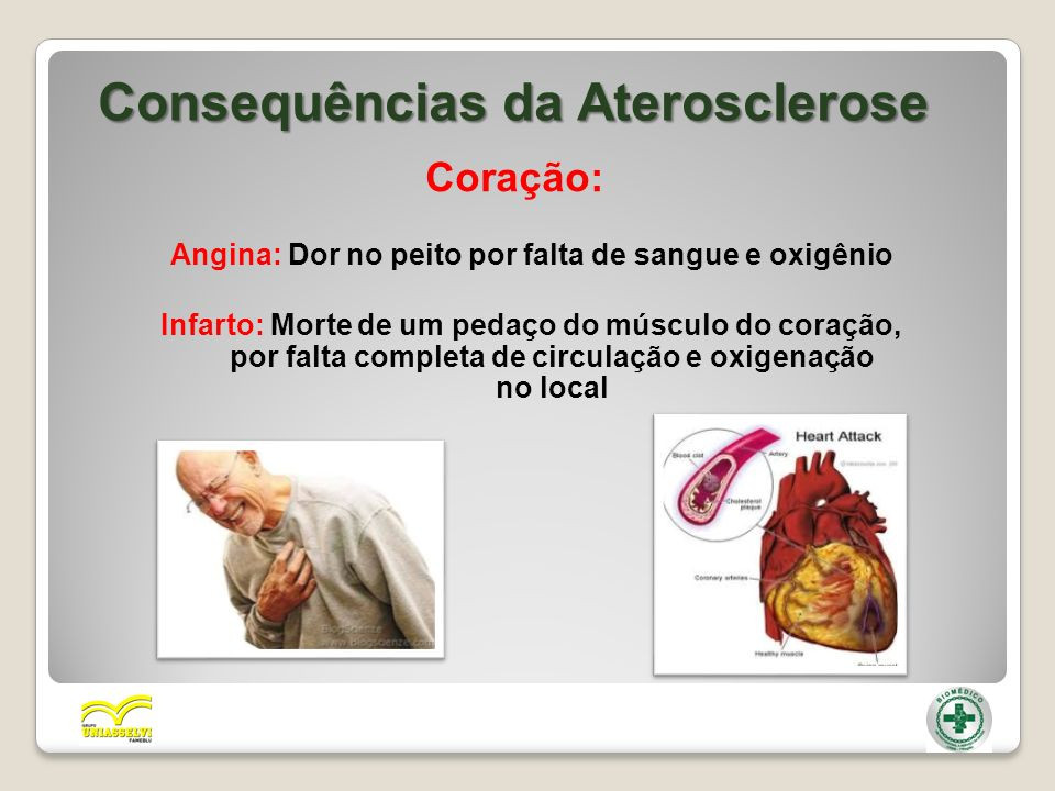 Consequências da Aterosclerose