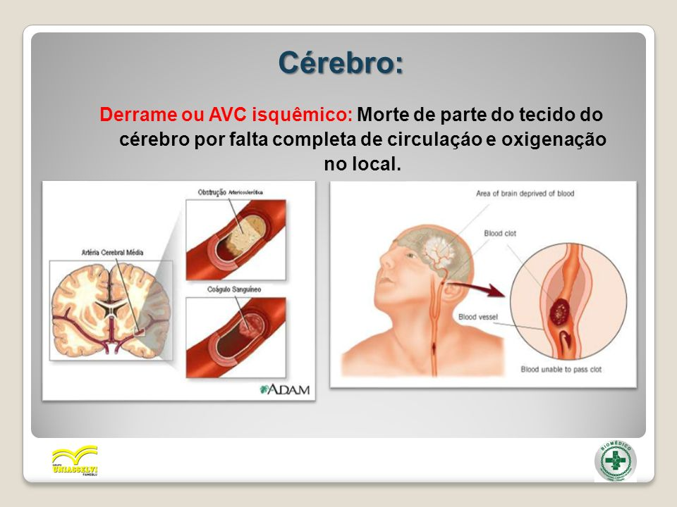 Cérebro: Derrame ou AVC isquêmico: Morte de parte do tecido do