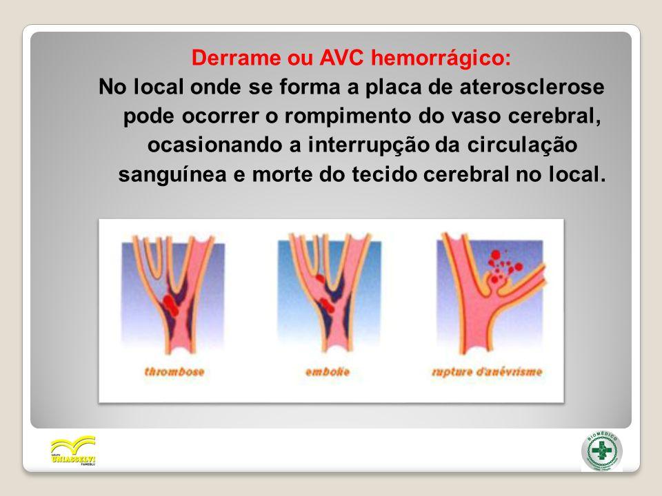 Derrame ou AVC hemorrágico: