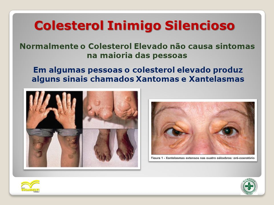 Colesterol Inimigo Silencioso