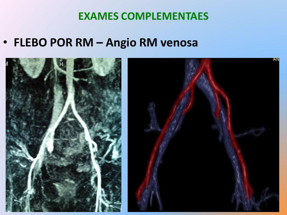 FLEBO POR RM – Angio RM venosa