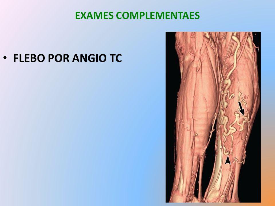 EXAMES COMPLEMENTAES FLEBO POR ANGIO TC