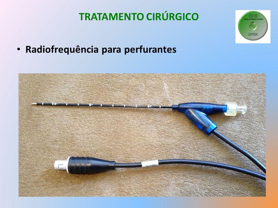 TRATAMENTO CIRÚRGICO Radiofrequência para perfurantes