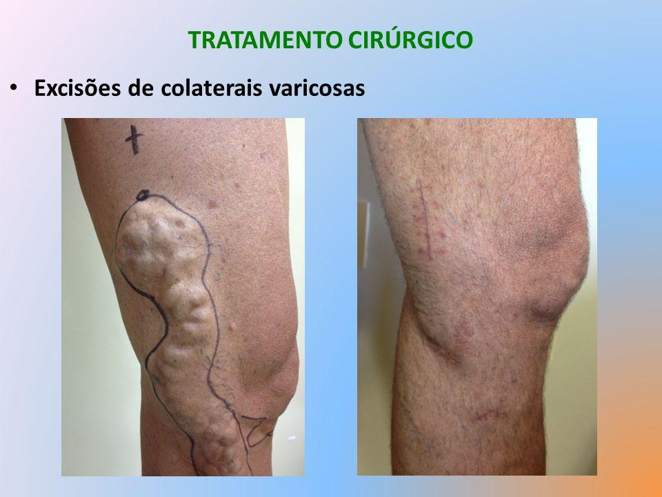 TRATAMENTO CIRÚRGICO Excisões de colaterais varicosas