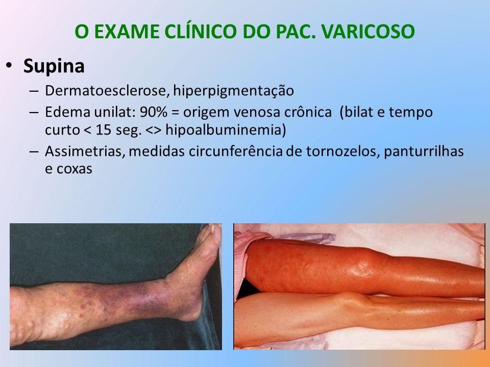 O EXAME CLÍNICO DO PAC. VARICOSO