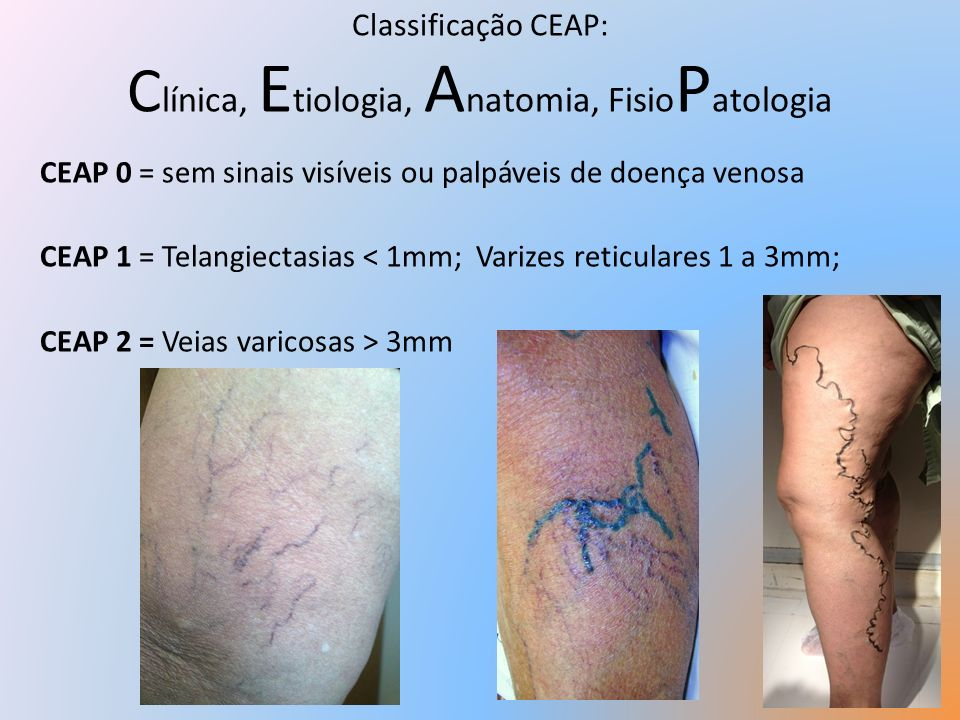 Classificação CEAP: Clínica, Etiologia, Anatomia, FisioPatologia