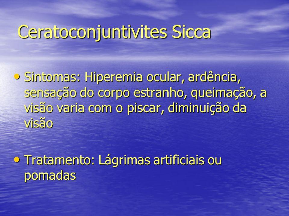 Ceratoconjuntivites Sicca