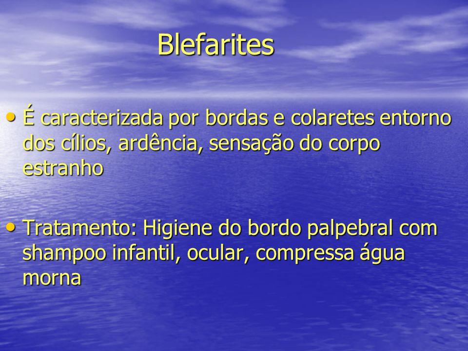 Blefarites É caracterizada por bordas e colaretes entorno dos cílios, ardência, sensação do corpo estranho.
