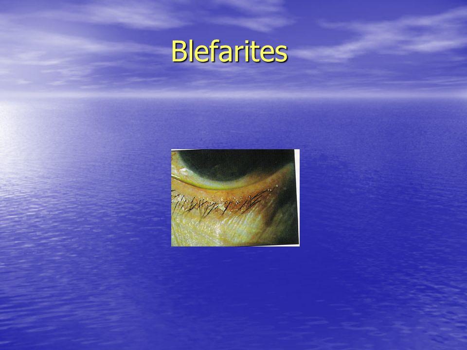 Blefarites