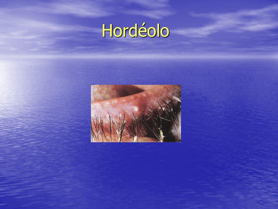 Hordéolo