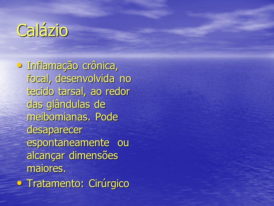Calázio