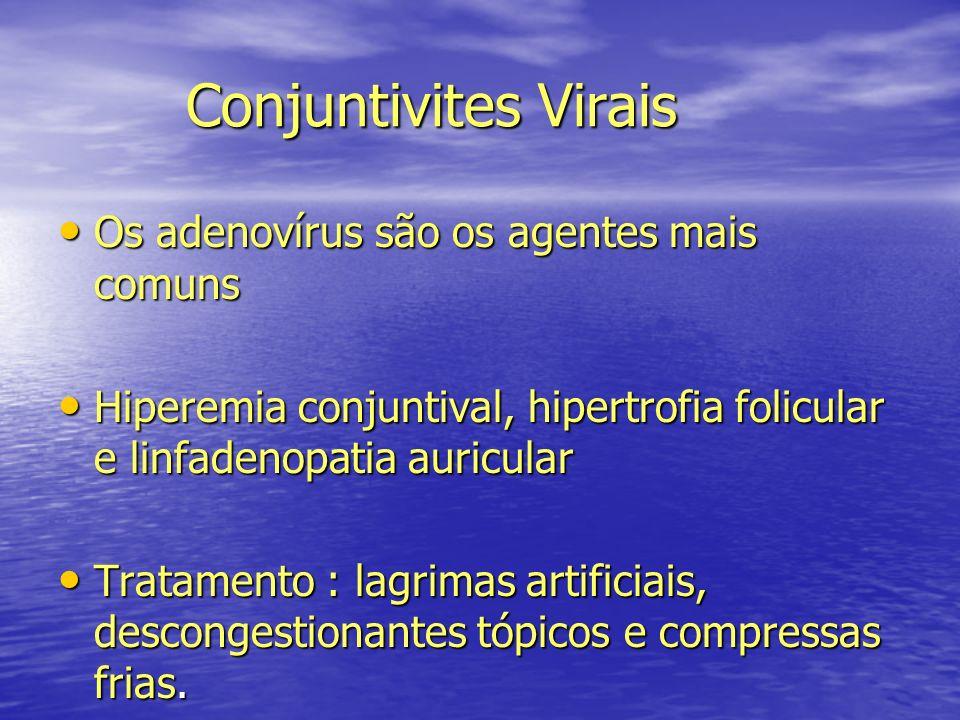 Conjuntivites Virais Os adenovírus são os agentes mais comuns