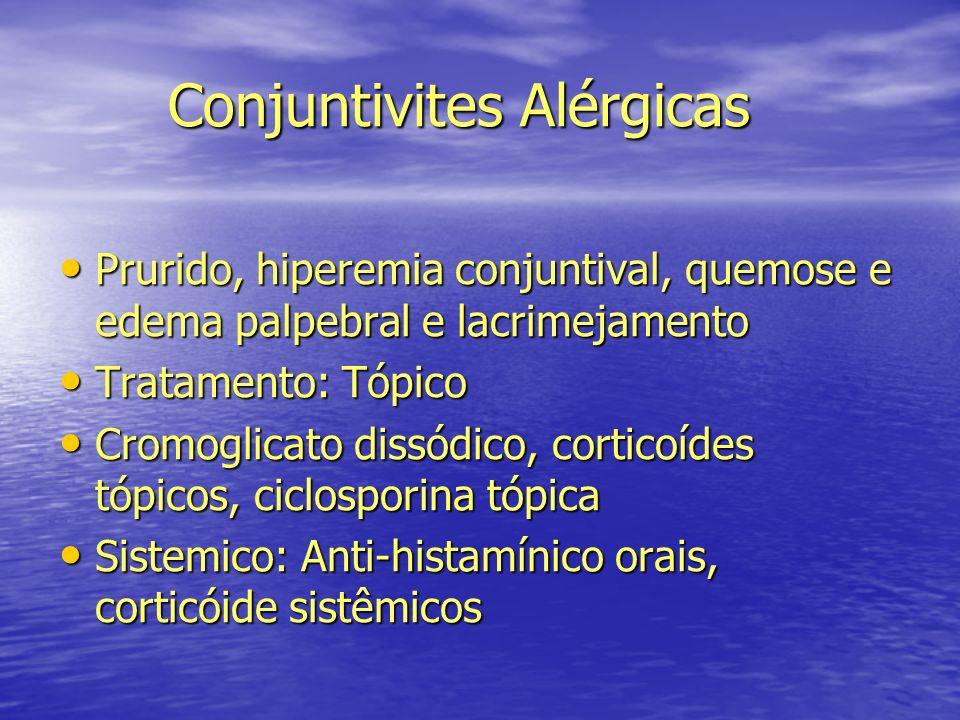 Conjuntivites Alérgicas
