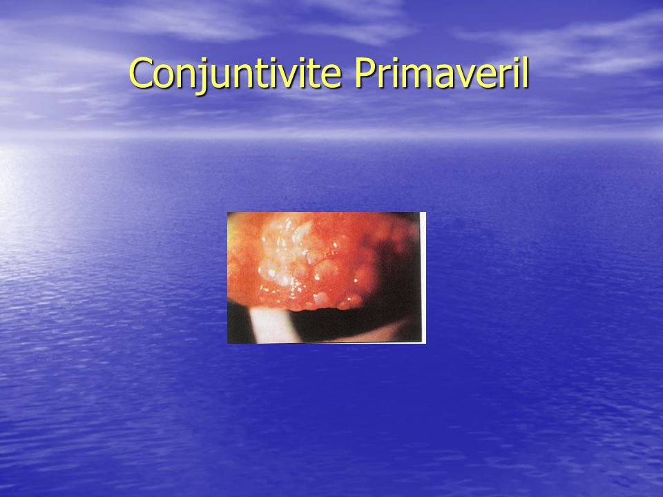 Conjuntivite Primaveril