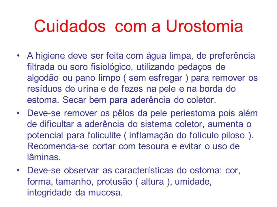 Cuidados com a Urostomia