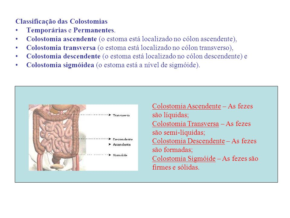 Classificação das Colostomias