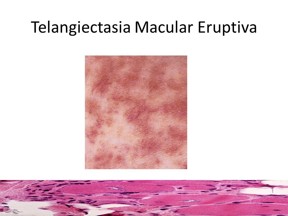 Telangiectasia Macular Eruptiva