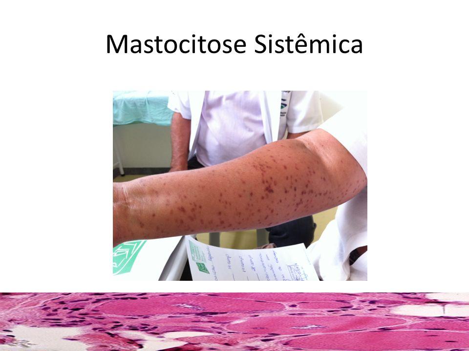 Mastocitose Sistêmica