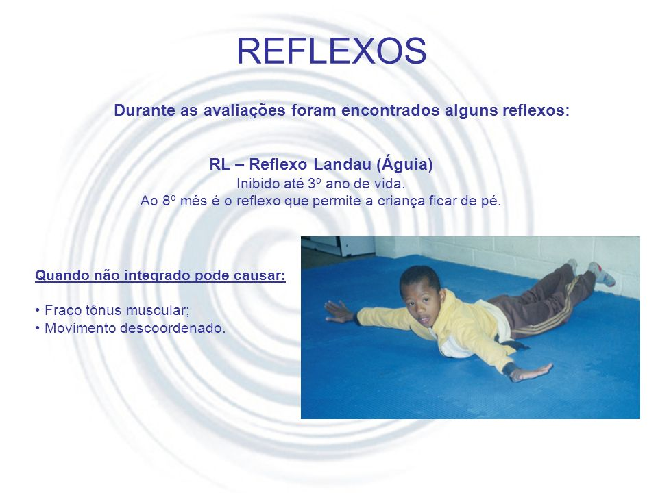 RL – Reflexo Landau (Águia)