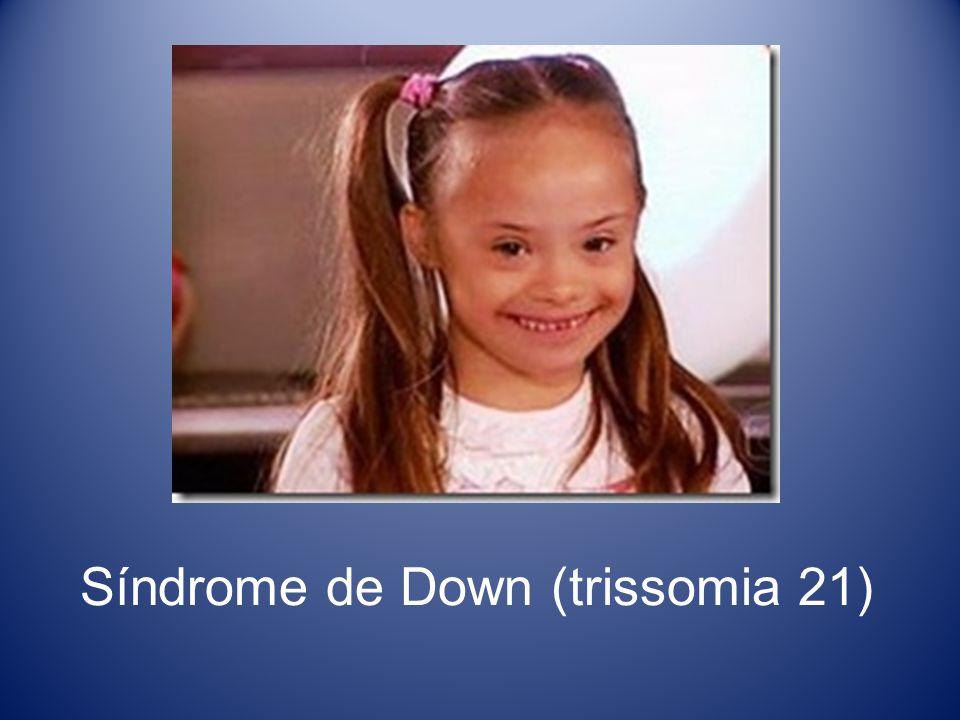Síndrome de Down (trissomia 21)