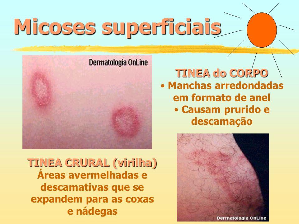 Micoses superficiais TINEA do CORPO TINEA CRURAL (virilha)