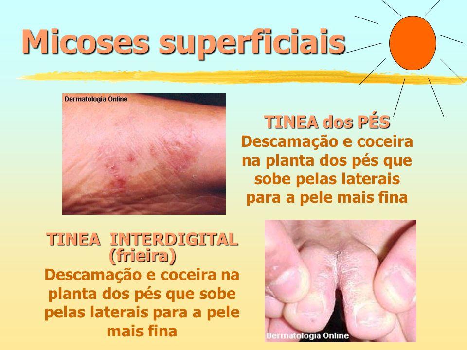 Micoses superficiais TINEA dos PÉS TINEA INTERDIGITAL (frieira)