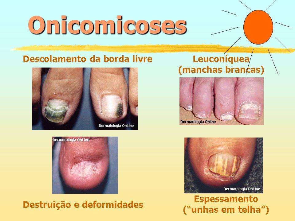 Onicomicoses Onicomicoses Descolamento da borda livre Leuconíquea
