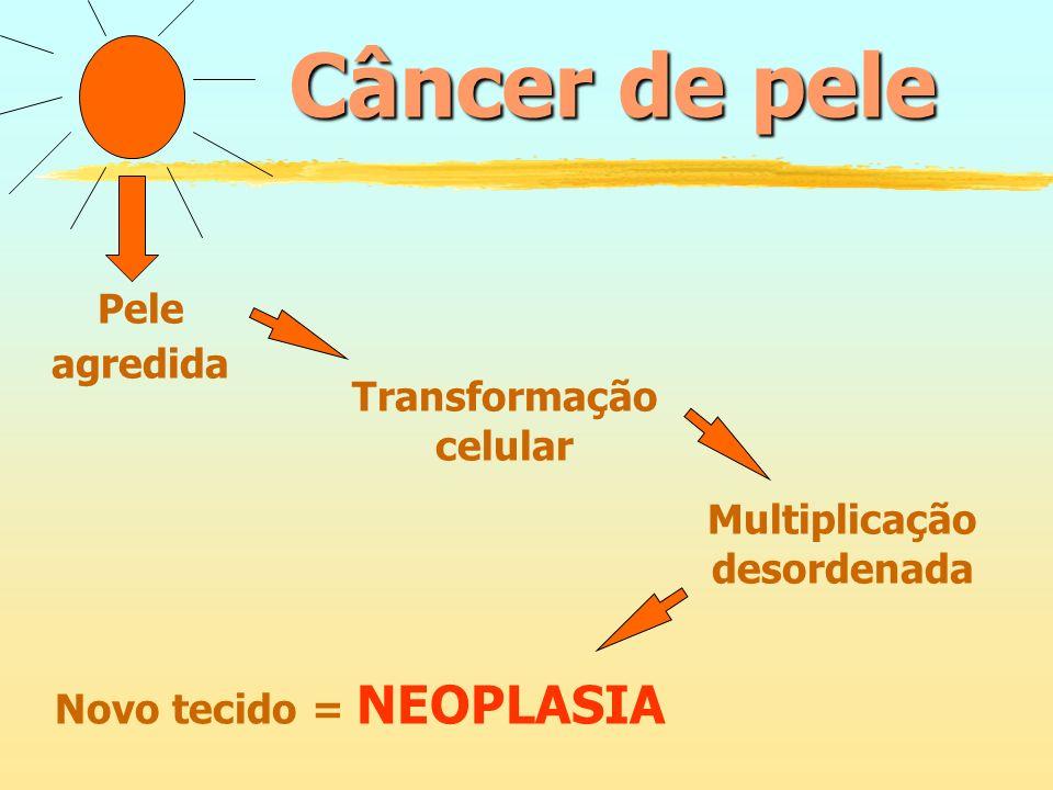 Câncer de pele Pele agredida Transformação celular