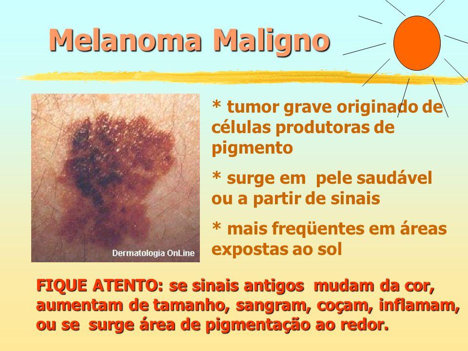 Melanoma Maligno * tumor grave originado de células produtoras de pigmento. * surge em pele saudável ou a partir de sinais.